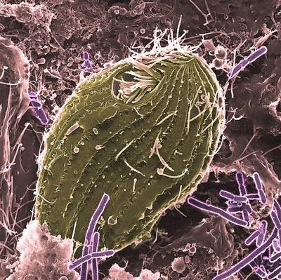 Alkueläimet parantavat bakteerien antibioottivastustuskykyä